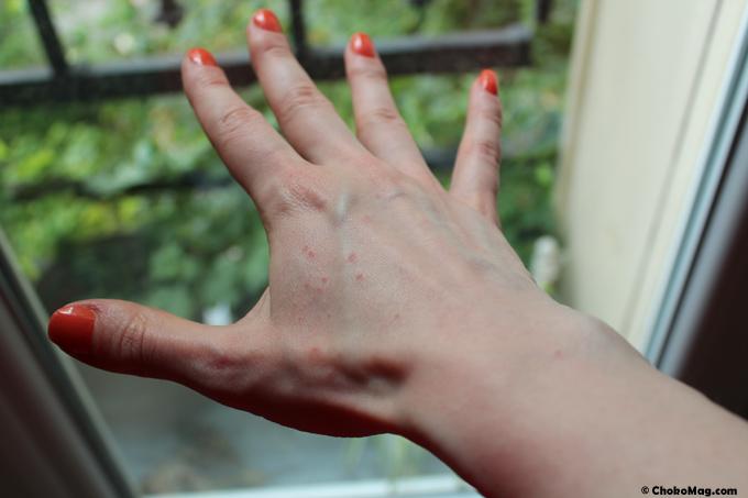Les effets secondaires des entozoaires